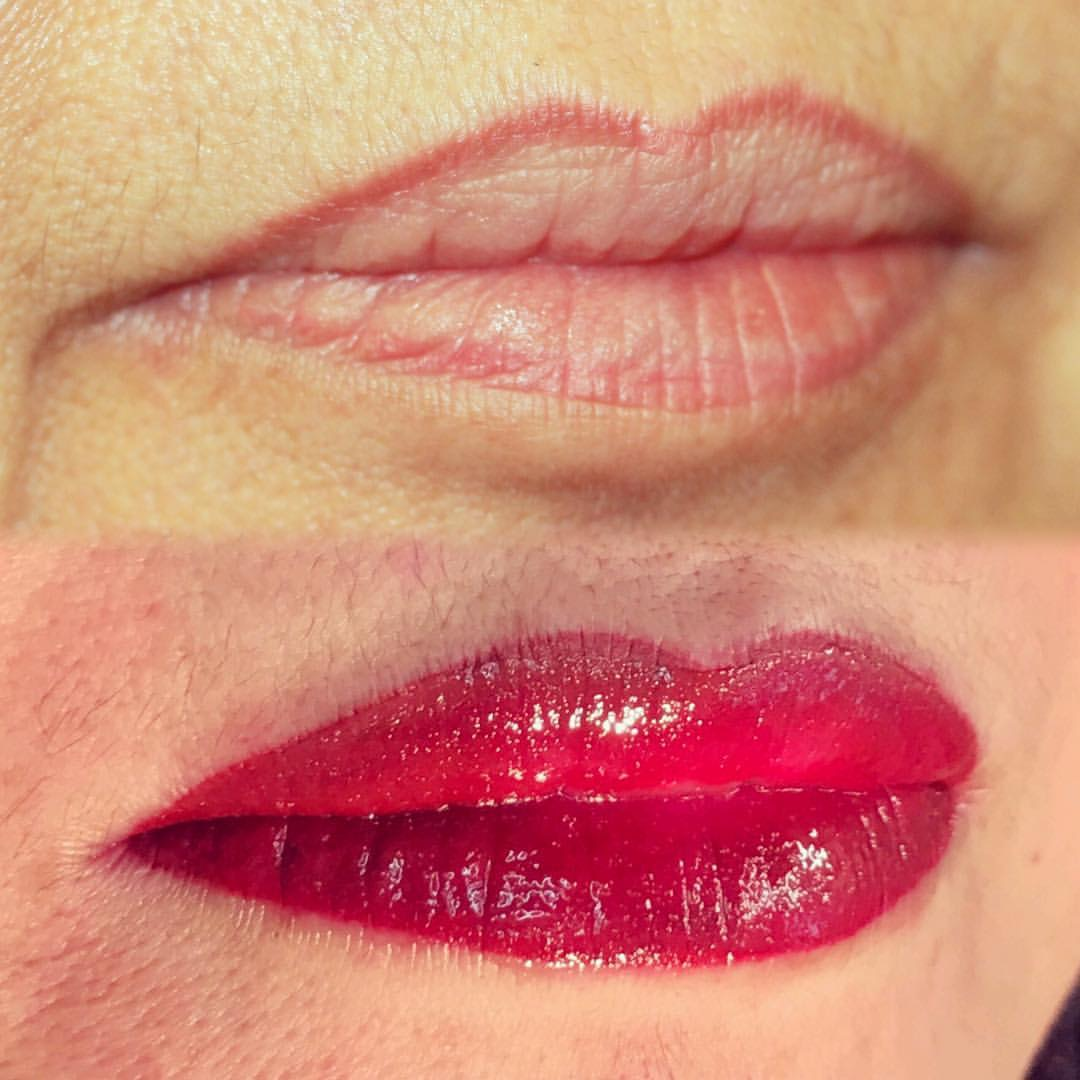 Permanent Lips before and after image